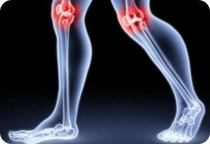 Jak się objawia reumatyzm?